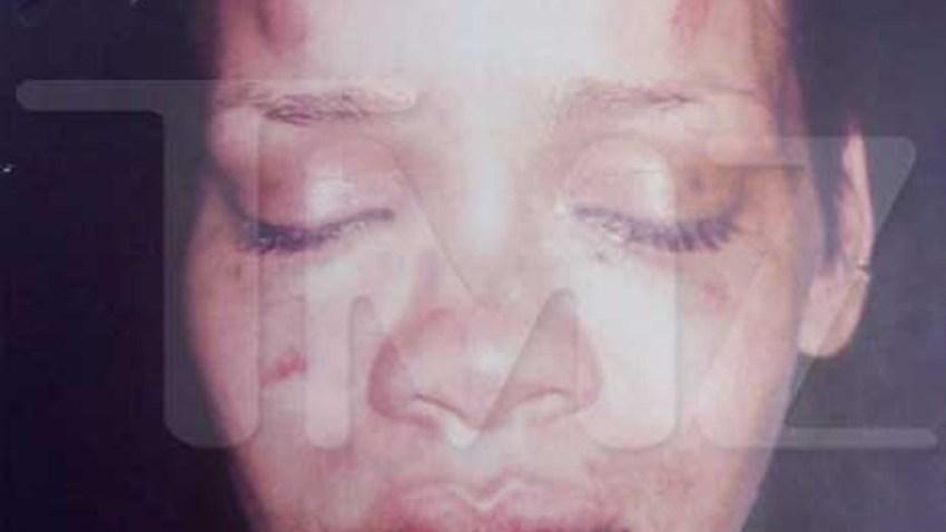 022009 Rihanna bloody bruised