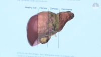 'Drink Themselves to Death:' Liver Disease Up 50% Since Start of Pandemic