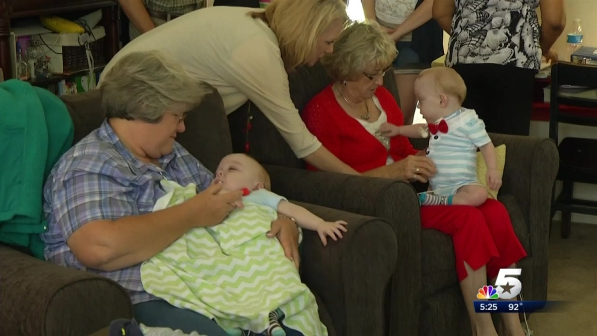 Formerly Conjoined Twins In Texas Celebrate Their 1st Birthday New
