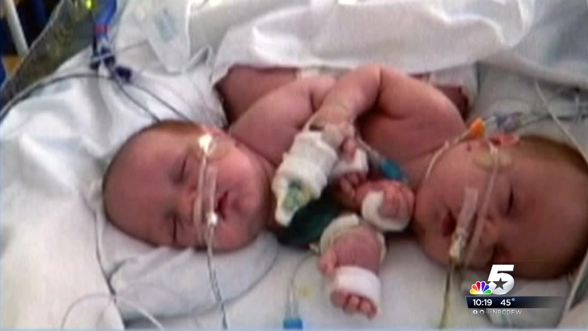 Emmett And Owen Ezell Formerly Conjoined Twins Are Learning To Talk