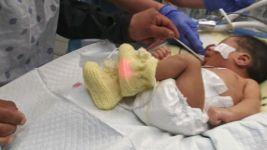 Baby of Slain Teen Opens Eyes for 1st Time, Family Says
