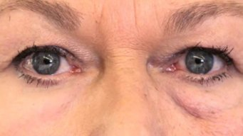 Researchers Say 'Second Skin' Tightens Baggy Eyes