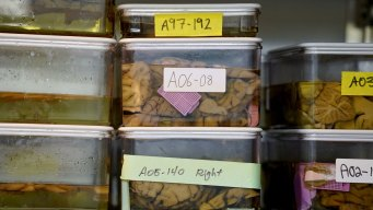 New Way of Defining Alzheimer's Aims to Find Disease Sooner