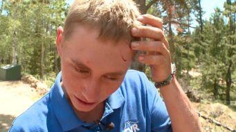Colorado Teen Survives Unprovoked Bear Attack While Camping