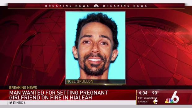 [MI] Hialeah Police Searching for Man Accused of Setting Pregnant Girlfriend on Fire