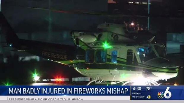 [MI] Man Badly Injured in Fireworks Mishap in Miami-Dade