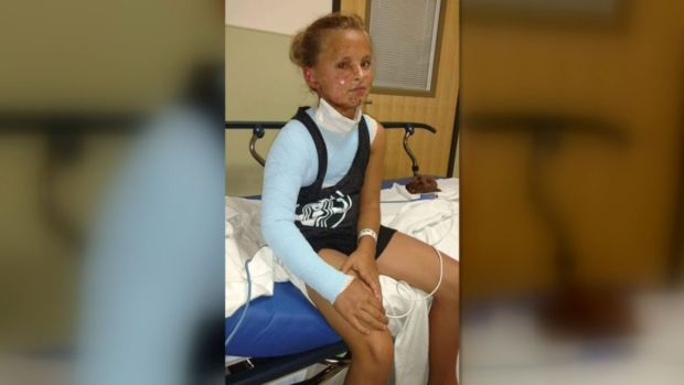 [NATL-DFW] Girl's Road to Recovery After Fireworks Explosion