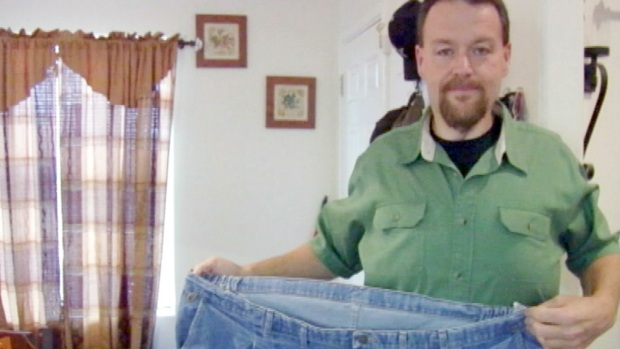 [NATL] Weight Loss Surgery Changes Man's Life