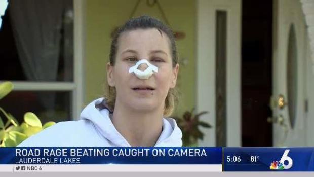 [MI] Victim of Lauderdale Lakes Road Rage Attack Speaks