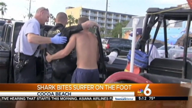 [MI] Surfer Bitten By Shark at Cocoa Beach