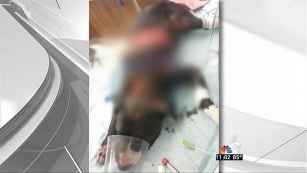 [MI] Pit Bull Badly Burned, Man Arrested