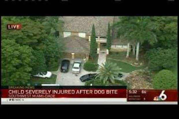 [MI] Dog Bite Child Injured SW Dade