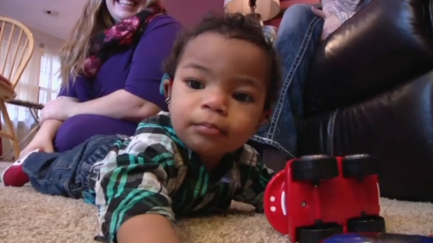Mother Opens Up About Son's Microcephaly