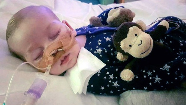Lawmakers Call for US Residency for Terminally Ill Baby