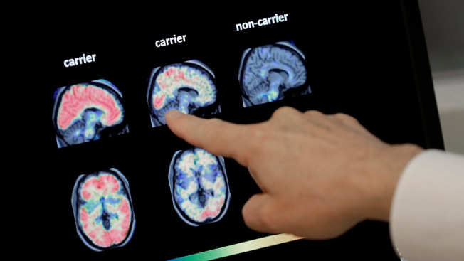 Studies in Healthy Older People Aim to Prevent Alzheimer's