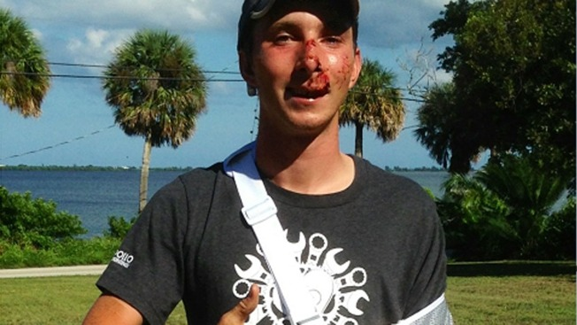 Cyclist Riding for Charity Injured in Hit-and-Run While on His Way to Miami
