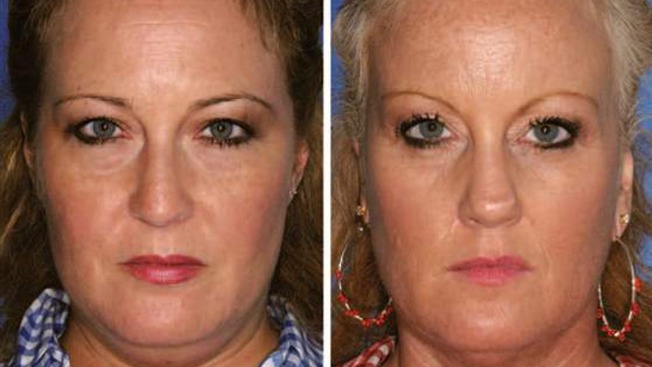 Smoking Makes You Look Older, Study of Identical Twins Finds