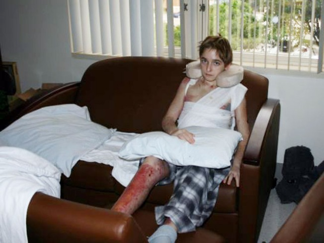Burned Boy Released From Hospital for the Holidays
