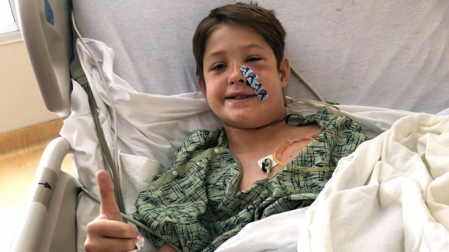 'Miraculous': Boy Survives After Meat Skewer Pierces Skull